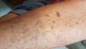 liver spots
