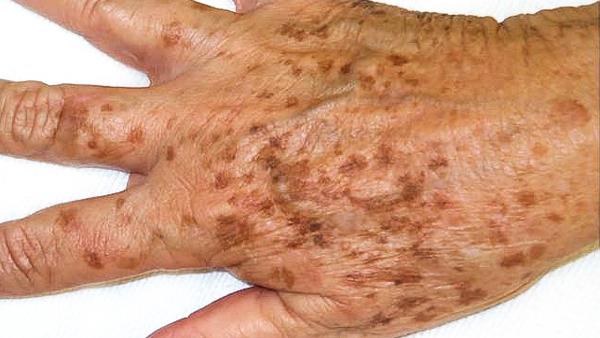 prevent age spots